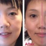 左右目の大きさ違いや上唇の口の開き方の左右差が改善!顔のバランス整い小顔へ 足首の外反へも少なくなり 細くなって大満足です。(東京都 ボディ・フットセラピスト工藤 奈々絵様40代後半)