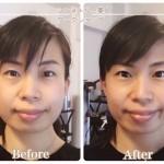 「左右非対称な右頬の膨らみがとれすっきり!バランスが良くなりました」東京都30代重曹コンサルタント山縣茜さん【シンメトリー Lipグループレッスン】