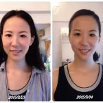顎関節症で頭痛めまい集中力低下でお悩みの方 お顔に軸が通ってきました(東京都 デザイナー30代 Risaさん)シンメトリー美人革命