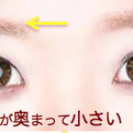 目のゆがみ構造の原因が見えてきますか?【シンメトリーeye】