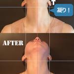 左右非対称の顔「隠れゆがみ」の原因