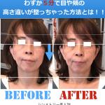 左右非対称な顔を、顔を触らずに頬や目の高さ違いが整う!