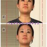 まっすぐ顔を向けれない方→お顔の傾きが軽減して小顔へ