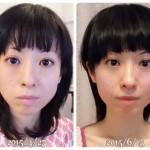 頬のエラ張りと目の高さと形に左右差が改善して更にシンメトリーな小顔美人へ(神奈川県 40代 宮崎操様)