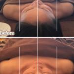 仰向けでお顔が傾くと要注意!お顔の軸がゆがんでいます!
