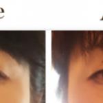 目元のたるみケアに頬骨が上がったら目元が綺麗に!若くなった!?