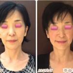 お顔が縦に長くなってきたら老け顔です!早めの老化対策を!