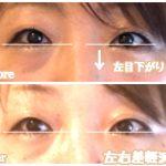 目の左右非対称の原因は、◯骨!