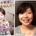 左右非対称な口のゆがみが1回で軽減し、小顔になれて嬉しいです!(埼玉県 20代 高橋由佳様)