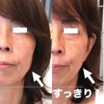 【左右非対称な顔を、手根骨から頬の高さ違いを整えるのです!】
