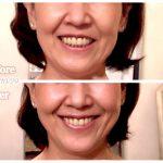 【予告】明日3/29(木) 20時! 「ソンな笑顔」から「いい笑顔」に一発逆転する方法を伝授