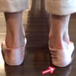右目が高く大きくなっているのは右足首が原因?