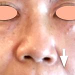 気づいていない人が多い小鼻のズレ問題