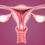 %LAST_NAME%さんの骨盤周りの悩み子宮の傾むきが原因かも?
