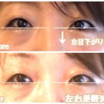 目の左右非対称の原因は、◯骨!【複製】
