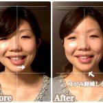 神秘の美容液に着目した施術でみなさんが1回で目に見える変化が!