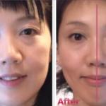 お顔のパーツの高さ違いがある方に共通した点