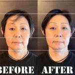50代お顔の長さが伸びてくる問題を解決させる兆し