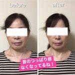 【ハイパフォーマンスBODYGEL】櫻井洋子さんのお客様の声